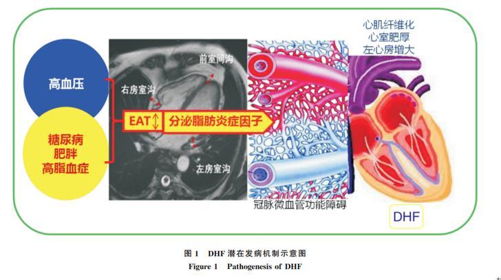 芪苈强心胶囊被列入《舒张性心力衰竭早期防治专家建议(2021)》