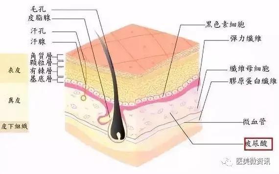 玻尿酸解决静态皱纹,肉毒素对付动态皱纹,你适合哪个?