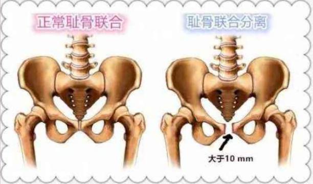 产后盆骨痛、无法动弹,小心耻骨联合分离!