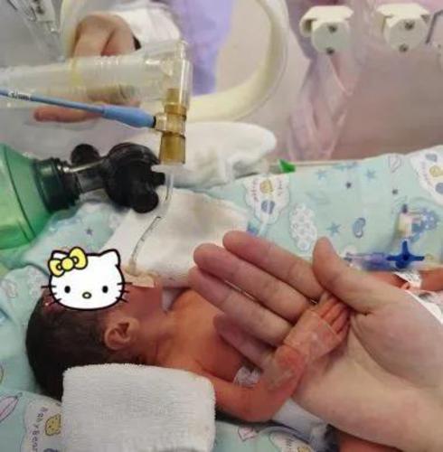 胎龄6个多月的早产儿闯过几道生死关,平安回家了!