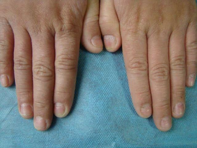 经常消化不良、腹泻、指甲出现一种现象,很有可能是肝脏出现问题