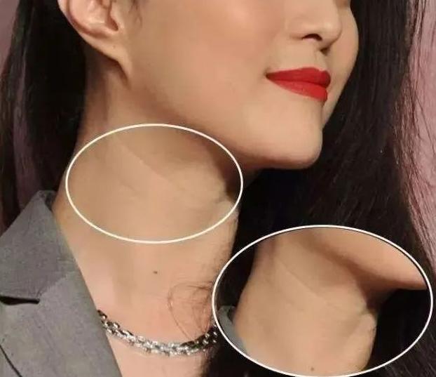 20岁的脸,30岁的颈纹!!!你知道颈部皮肤衰老比面部更难修复吗?