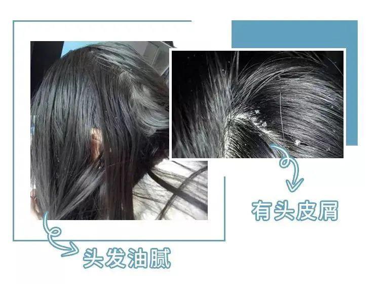 买一送一 | 3天不洗头也不痒!国家专利氨基酸洗发水,固发还强效去头屑