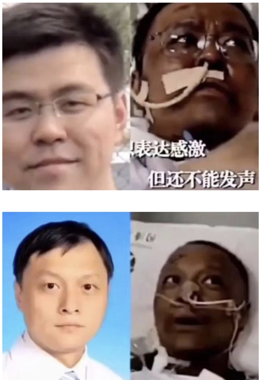 中国科学报:新冠肺炎重症患者皮肤为啥会变黑?