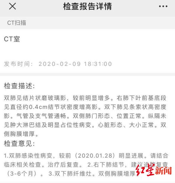 徐汉国进入普仁医院时的CT查抄效果 图据受访者