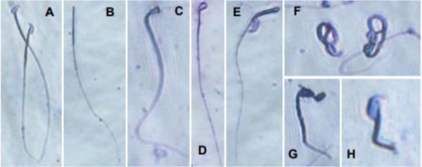 新研究:瑞德西韦小鼠实验中有生殖毒性 严重影响精子质量