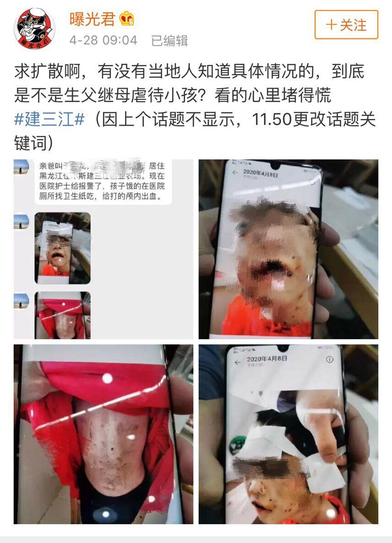高德招商:建高德招商三江被虐女童转入哈尔滨市儿童图片