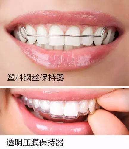 成年人矫正牙齿后会反弹吗?需要终生佩戴保持器?