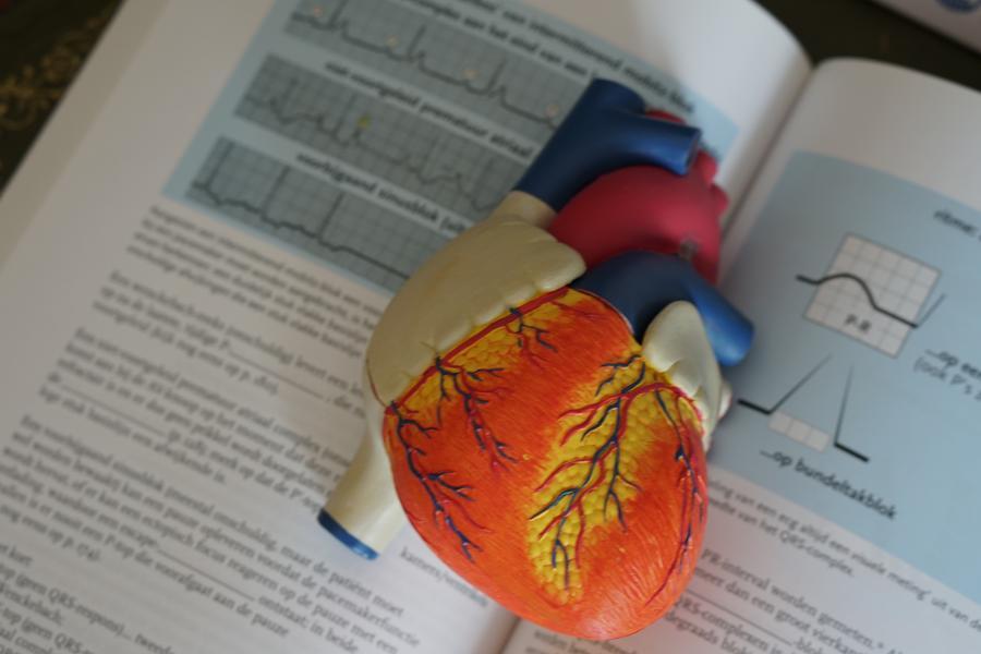 中国心脏支架手术猛增,赛诺医疗再现千亿美元雅培的辉煌?