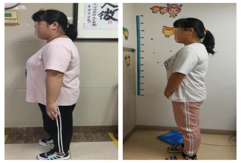 90后姑娘八种疾病缠身,肥胖+不孕,减重52斤后自然受孕
