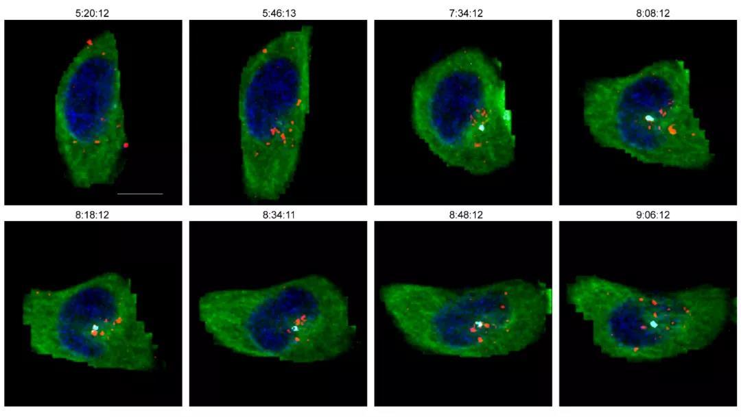 中科院揭示HIV-1携带衣壳的病毒核心进入细胞核机制