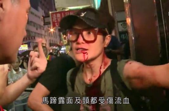 (图为由于否决坏人损坏公物而遭到毒打的香港演员马蹄露)
