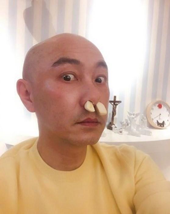 张卫健偏方治鼻敏感   听妈妈话蒜头塞鼻