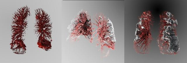 不同CT集可视化效果对比。左1:正常肺部CT集可视化参考;左2:患者A的CT胸片可视化;左3:患者B的CT胸片可视化,明显可见肺部纤维化 图片来自北大新闻网