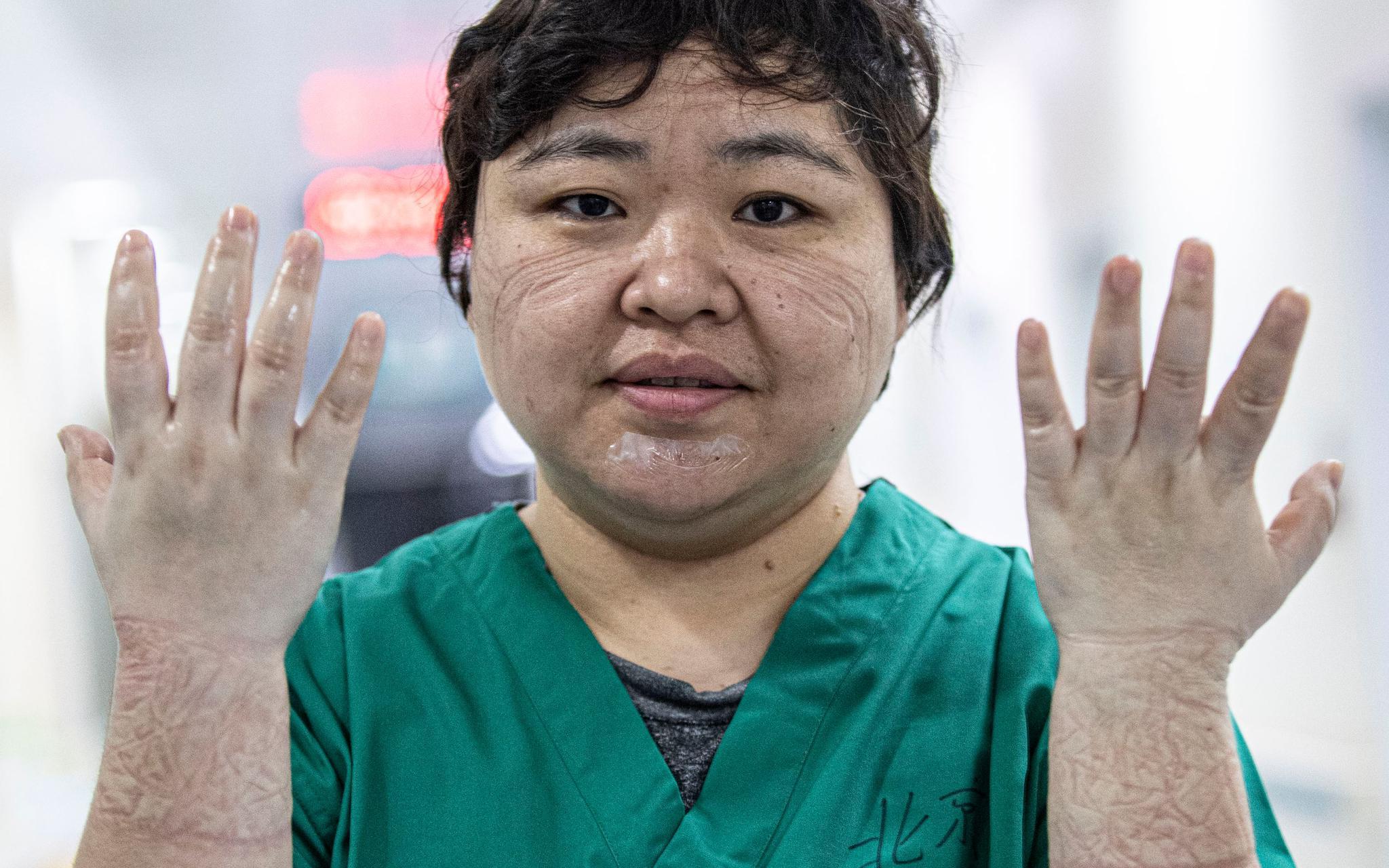 """护士郭京:迎接""""清零""""归来的学生,比自己回来还开心图片"""