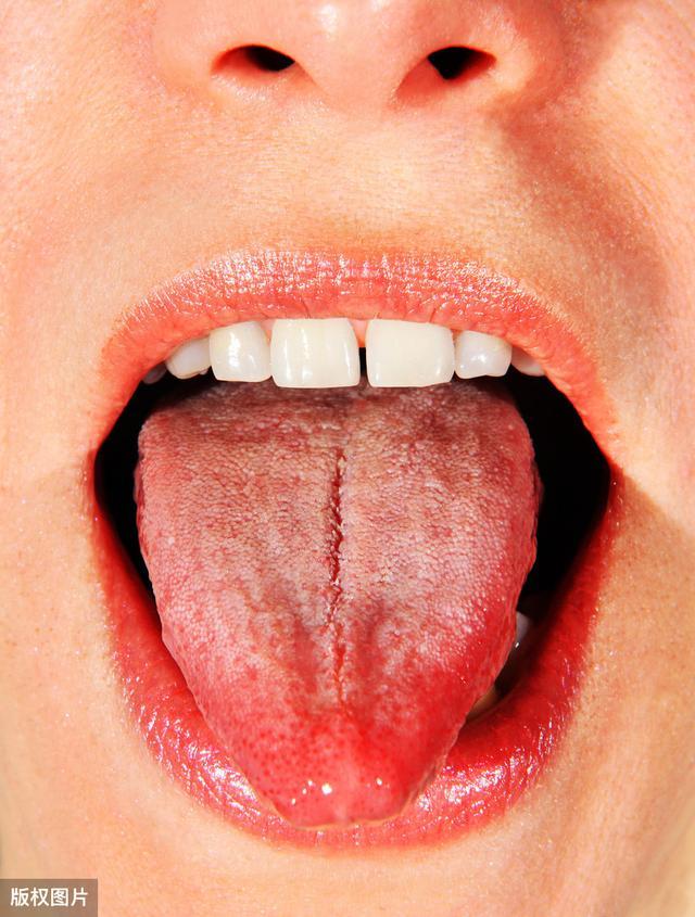 你舌头上有裂纹吗?注意了