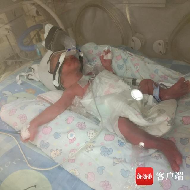 海口一女子怀孕27周胎膜早破 双胞胎早产呼吸衰竭盼救助