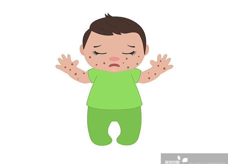 【健康】湿疹宝宝接种疫苗 避开湿疹部位