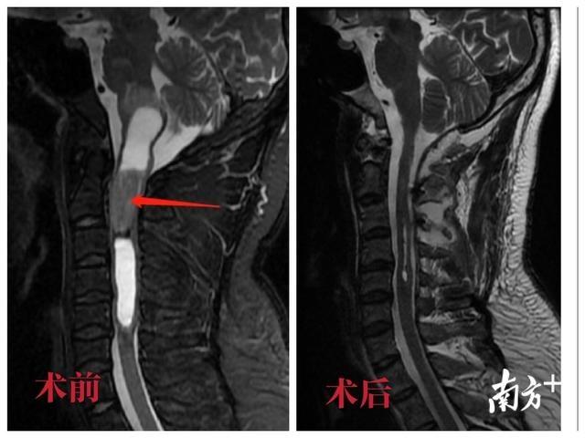 男子颈椎肩颈疼,竟是脖子里长了个鸡蛋大的肿瘤