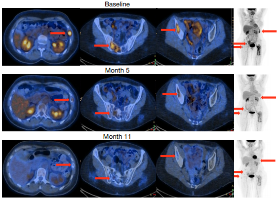 """《自然》:模擬禁食或是治療乳腺癌的""""神助攻""""! 科學家發現模擬禁食能增強乳腺癌內分泌治療療效,延緩耐藥的機制丨科學大發現"""