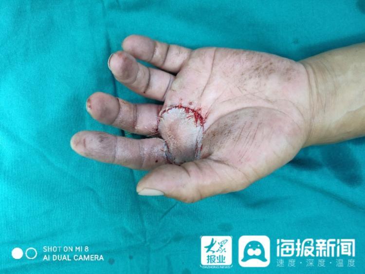 无影针密缝5小时!聊城市人民医院东昌府院区成功完成断掌再植手术