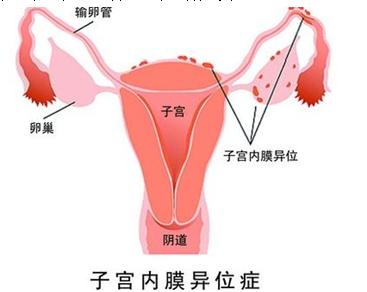 痛经就是子宫内膜异位症吗?济南青华医院医生为您解析!