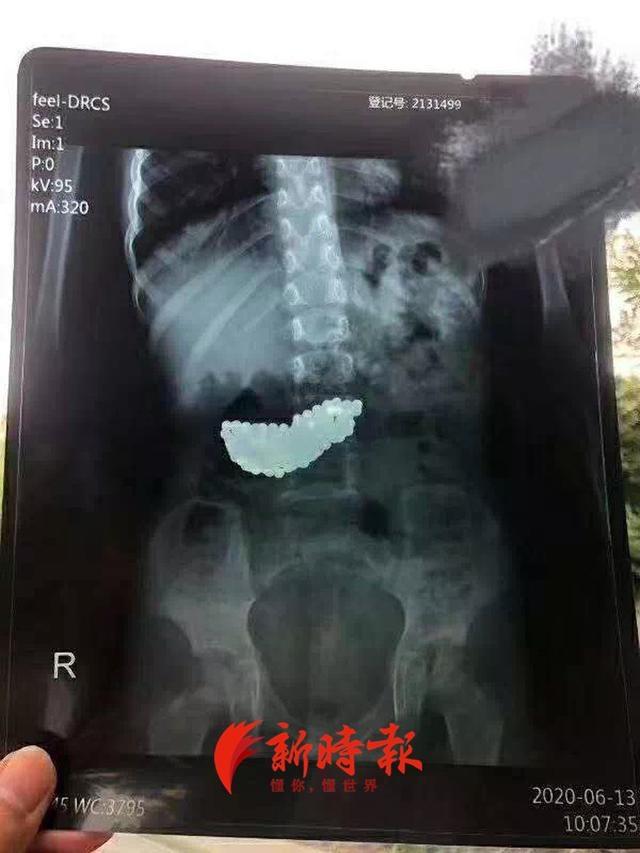 揪心!事发济南,5岁女童误吞190颗磁珠,2个多月后家长才发现