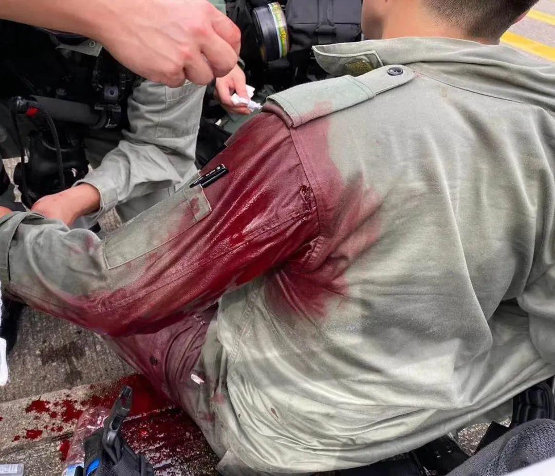 警察受伤。图源:港媒