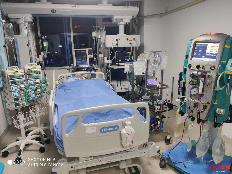 """全国仅400余台  四川德阳首次用这个""""救命神器""""抢救危重患者"""