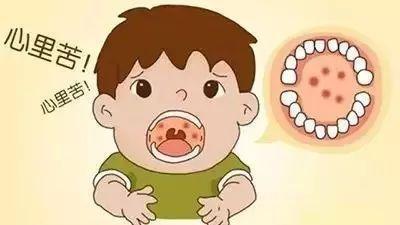 这个季节,还要注意疱疹性咽峡炎