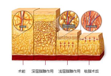 韩啸芒果脂肪移植如何提高脂肪成活率?
