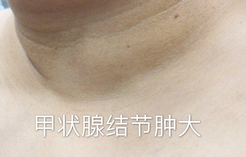 微波消融治疗甲状腺结节,轻松解除疾病困扰!
