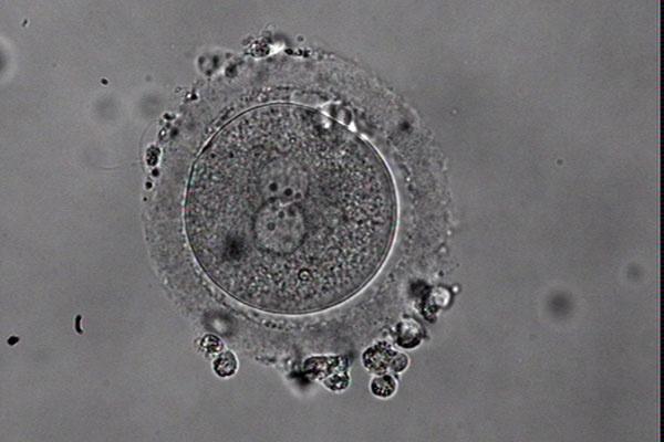 """帮您筛除""""异常胚胎"""",他们练就一身绝技"""