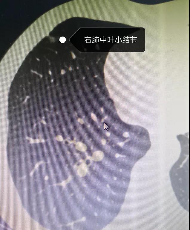 """体检发现双肺小磨玻璃结节  潍坊市中医院""""小神钩""""一举解决"""
