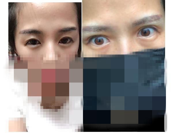 大众网快快帮|双眼皮手术效果差欲退款遭拒  记者帮忙退还手术费