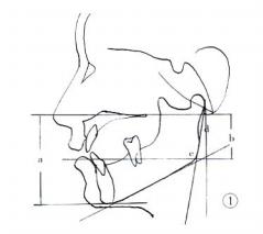 下颌角截骨手术时如何防治出血和血肿