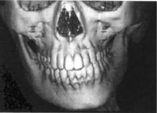 水蜜桃截骨术针对单侧小下颌畸形的诊断和治疗方法