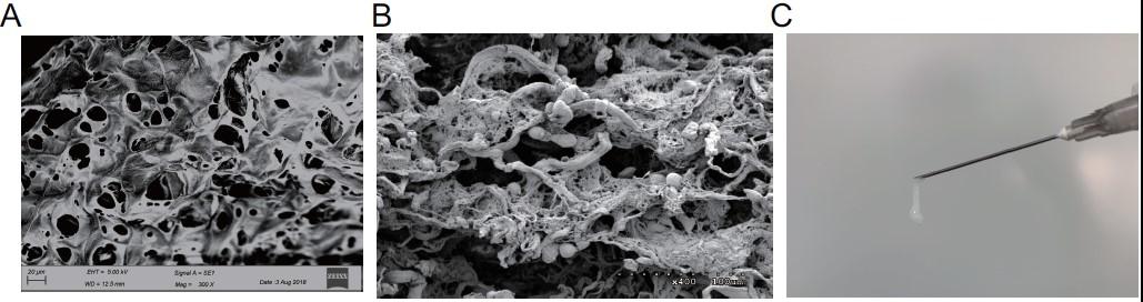 心肌梗死治疗再拓新途径,我国胶原生物材料联合干细胞引导心肌再生取得原创新成果
