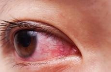 眼睛干涩有红血丝?可能与4种原因有关