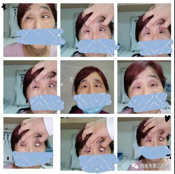 西安市第三医院帮助患者告别多年高度近视性内下斜视