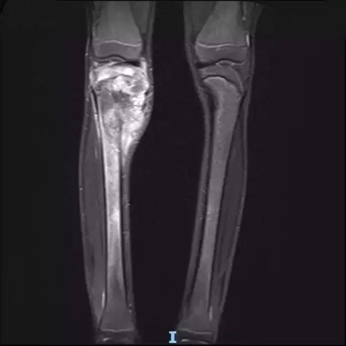 14岁少年罹患恶性骨肿瘤, 保肢手术助其帅气归来
