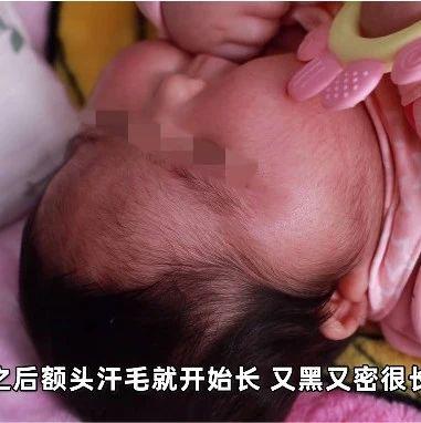 女婴2个月内体重暴增,脸硬得像石头…婴儿霜有问题!当地卫健委:涉事产品下架