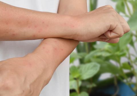 冬季皮肤敏感易得荨麻疹,现在开始做这三项,轻松过冬天