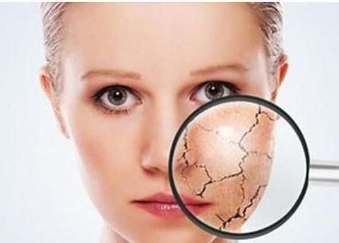 告别敏感肌肤的三大方法,学会再也不用担心皮肤脆弱