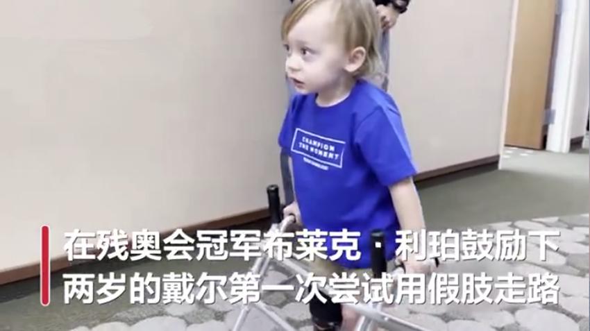残奥冠军鼓励2岁萌娃用假肢走路获高赞,网友:很棒