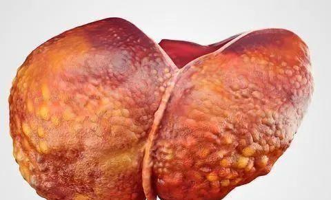 不要吃桌上的两种伤肝食物,三个好习惯可以滋养肝脏护肝