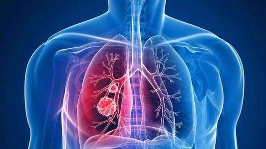 查出肺癌,却没有任何不舒服,是怎么回事?
