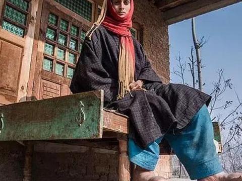 印度大象脚女孩被嘲笑,没试过穿鞋的感觉,双脚让人同情