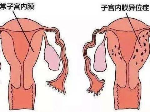 女性患子宫内膜异位症,是如何影响受孕的?