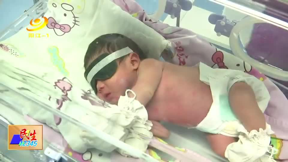 新生儿需谨防病理性黄疸